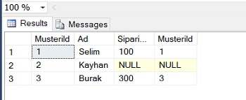 SQL Server'da Left Join ve Left Outer Join Arasındaki Farklar