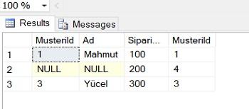SQL Server'da Right Join ve Right Outer Join Arasındaki Farklar